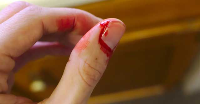 picture of a thumb that is cut and bleeding for different types of wounds
